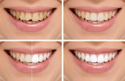 Affordable Smile Makeover in Delhi - Smile Delhi The Dental Clinic