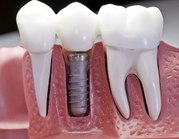 Get Affordable and Quality Dental Implants in Delhi