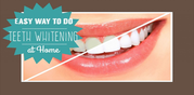 Affordable Laser Teeth Whitening Cost