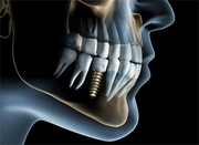 Full Mouth Dental Implants in Gurgaon