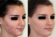 Get Clear and Glowing Skin with Best Acne Treatment in Delhi