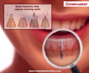 Dental Implant Services India| Immediate loading dental implants