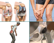 Joint Replacement Centre In Delhi