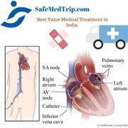 Vertebroplasty cost in India-SafeMedTrip