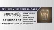 Dental Surgeon in Delhi   White Smile