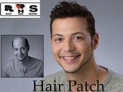 Hair Transplant Cost in Delhi   Hair Restoration